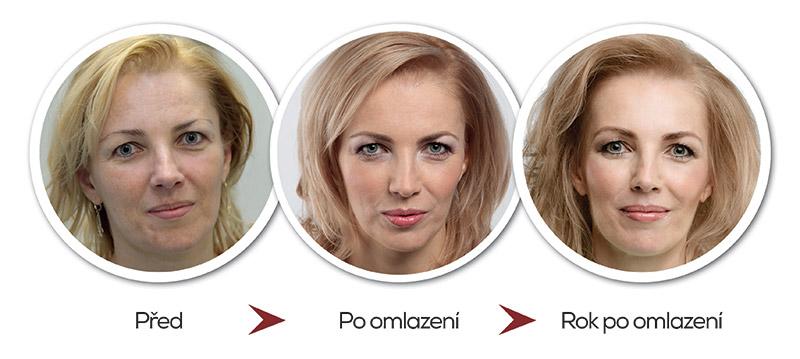 https://www.zenapo40.cz/media/rok-po-omlazeni/omlazeni-rok-pote-01.jpeg